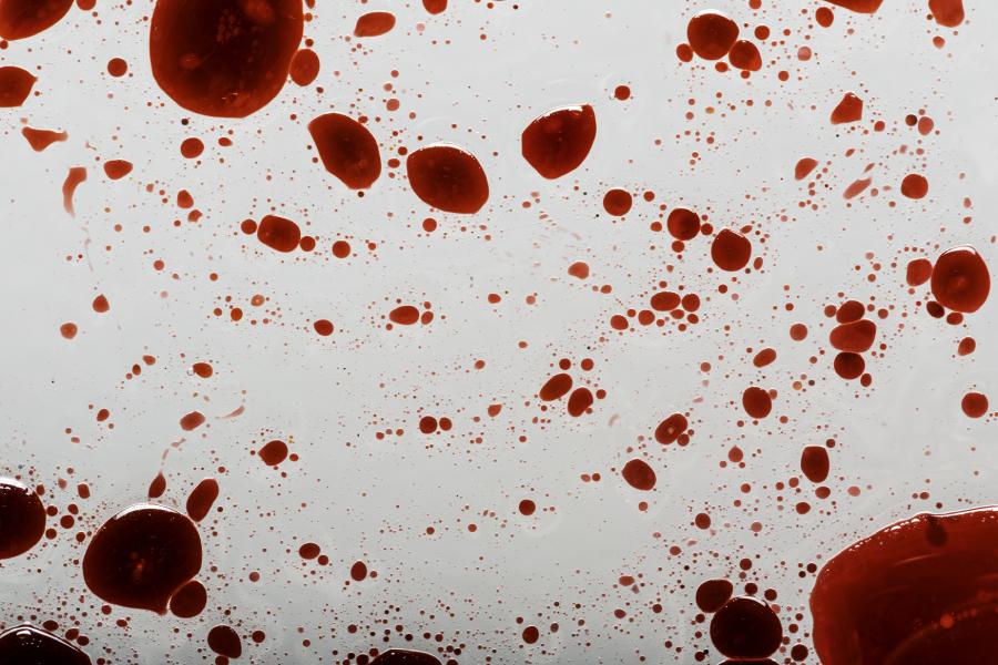 blood-splatter